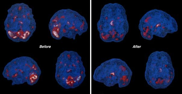 SPECT scans of PTSD sufferer before and after Neurofeedback